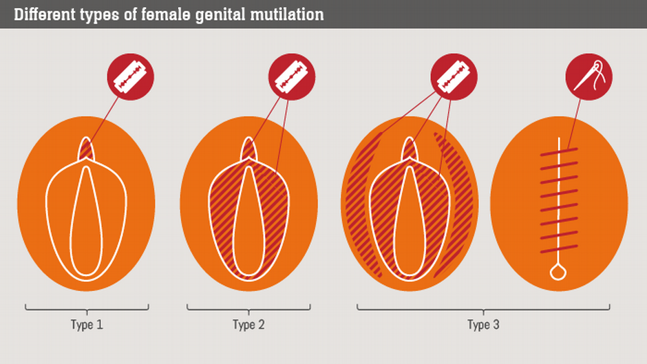 the long term psychological effects of female genital mutilation