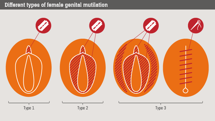 A picture of the different types of FGM