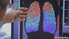 01.10.2015 DW fit und gesund COPD 02