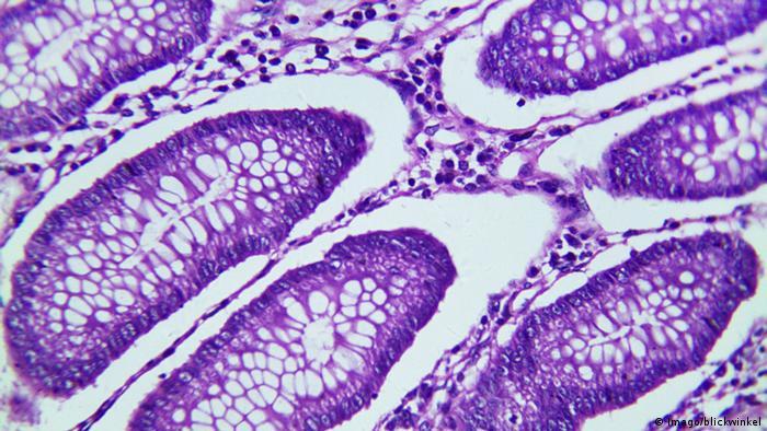 Krebs Krebszelle Illustration Darmkrebs