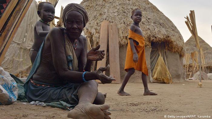 Südsudan Mehr als 30.000 Menschen laut UNO vom Hungertod bedroht