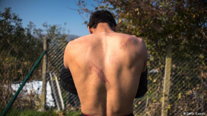 Khan shows wounds he received on his back after being beaten with nunchucks by human traffickers