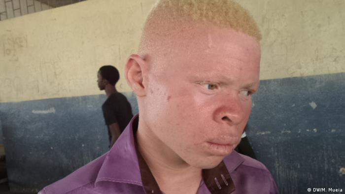 An albino boy from Mozambique