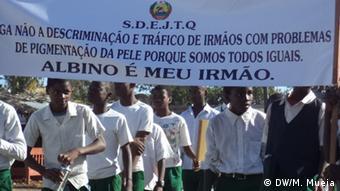 Mosambik Albinos in Quelimane