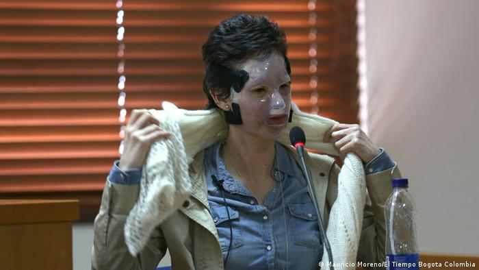 Natalia Ponce de León, un año después del ataque. La máscara de policarbonato es parte del proceso de rehabilitación
