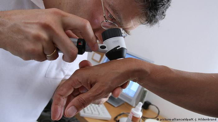 Dermatologist checking patient's hand (picture-alliance/dpa/K.-J. Hildenbrand)