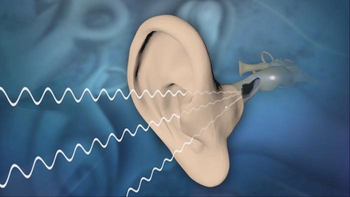 دراسة: فقدان السمع قد يكون عاملا مسببا للخرف