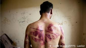 Жертва пыток в сирийской тюрьме