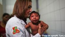 Brasilien Recife Baby mit Mikrozephalie