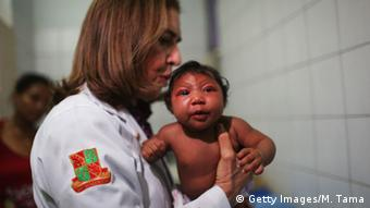 A doctor holds a baby with microcephaly. (Photo: Mario Tama/Getty Images)