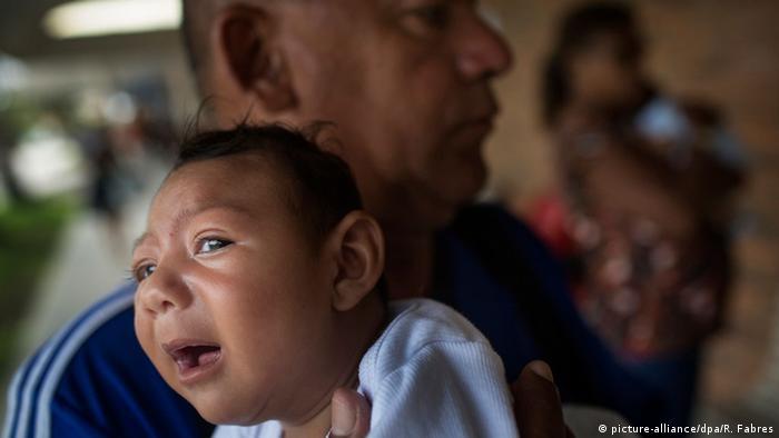 Criança com microcefalia no Recife.
