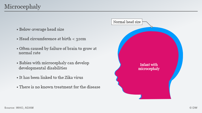 Infographic illustrating issues caused by microcephaly