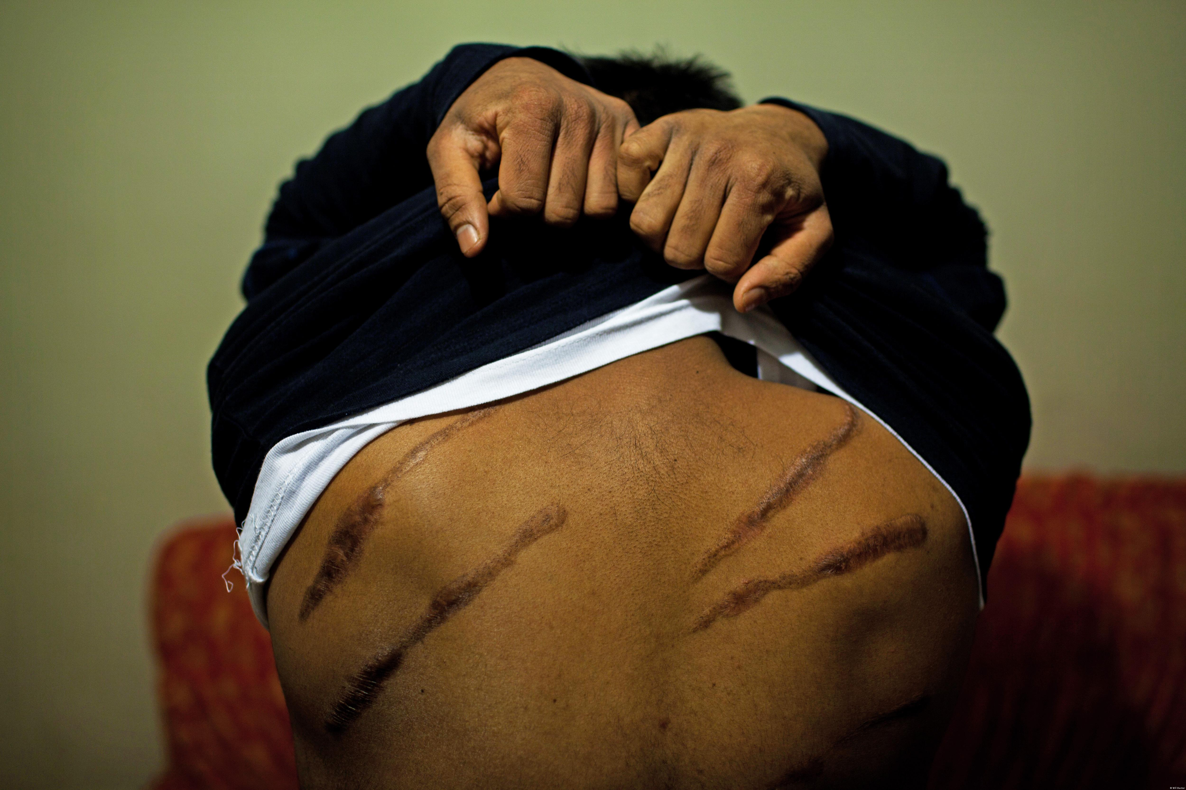 Branding marks on Tamil torture survivors: Photo by Will Baxter, for Tainted Peace: Torture in Sri Lanka since May 2009, Freedom from Torture