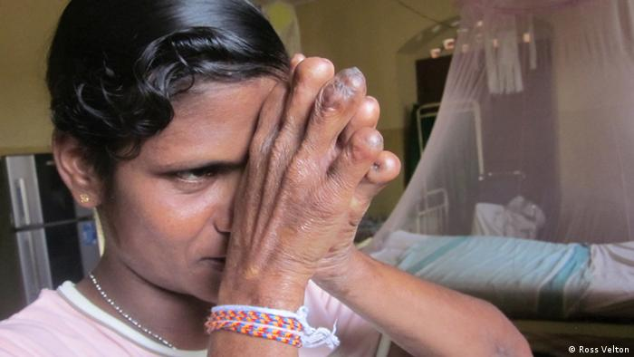 Sri Lanka hospital offers sanctuary for leprosy's forgotten generation