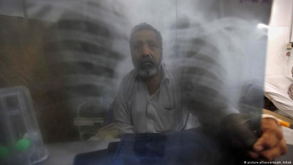 Pakistan Peshawar Röntgenbild mit Tuberkulose Verdacht