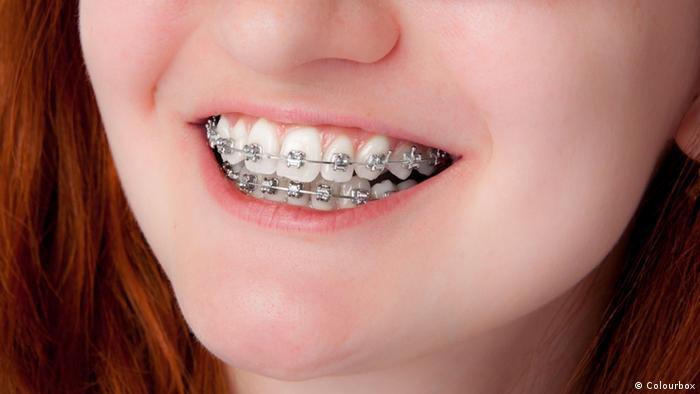 7.4 في المائة من الألمان يعانون من حساسية المعادن، ولا سيما النيكل، الذي يتسبب بأعراض الحساسية. لكن حتى مشابك تعديل الأسنان والركب والأوراك الصناعية تتسبب لدى البعض بالحساسية.