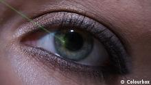 Laser-Operation an einem Auge