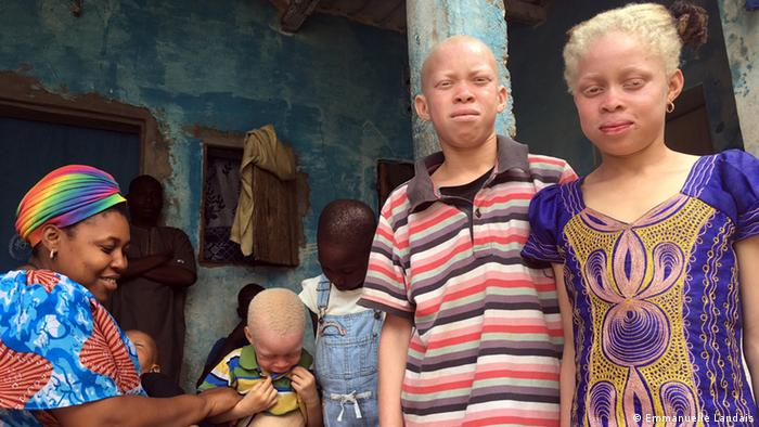 Senegal: Albinos want their own sunscreen factory | Africa | DW