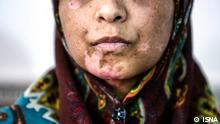 Iran Frau Häusliche Gewalt
