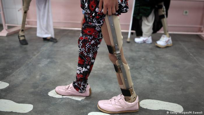 Landminen Opfer Frau im Krankenhaus Rotes Kreuz Kabul Afghanistan (Getty Images/M.Saeedi)