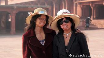 Indische Opfer von Säureattentaten Organisation Stop Acid Attacks
