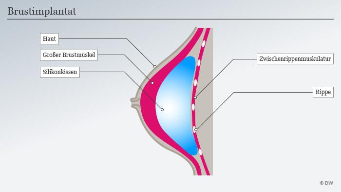 Infografik Brustimplantat Deutsch
