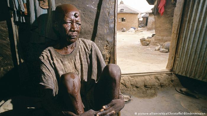 Flussblindheit Kwatu Dada Nigeria
