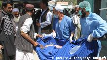 08.05.2016*** epa05294358 An Afghan, man who was injured in a road accident, is brought to local hospital in Ghazni, Afghanistan, 08 May 2016. Fifty-two people were killed and at least 73 injured when two buses collided with a fuel tanker on 08 May in Kabul highway, an official said. EPA/SAYED MUSTAFA ATTENTION EDITORS: PICTURE CONTAINS GRAPHIC CONTENT | picture alliance/dpa/S. Mustafa