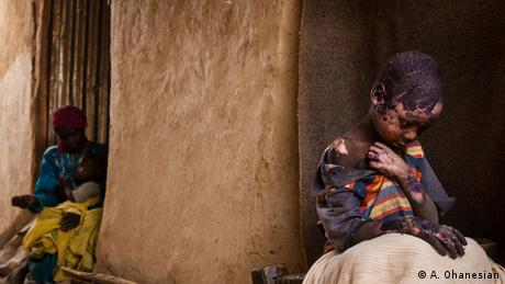 Little boy with burns is looked after by his mother; Copyright: Adriane Ohanesian