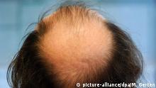 ARCHIV - Ein Mann mit Hinterkopfglatze sitzt am 18.01.2005 in einem Düsseldorfer Büro vor seinem Computer. Bakterien auf der Kofhaut könnten möglicherweise mitverantwortlich für die Bildung von Schuppen sein, haben chinesische Wissenschaftler herausgefunden. Foto: Martin Gerten dpa (Zu dpa Bakterien auf der Kopfhaut könnten Schuppen hervorrufen vom 12.05.2016) +++(c) dpa - Bildfunk+++ | Verwendung weltweit Copyright: picture-alliance/dpa/M. Gerten