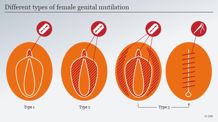 Infografik Typen weibliche Genitalverstümmelung Englisch
