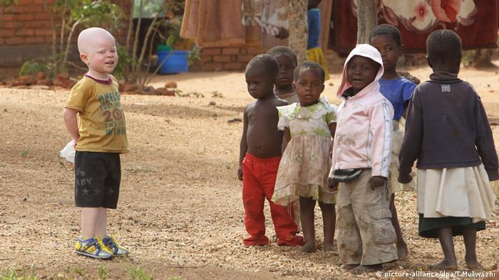 A boy living with albinism plays with other children who don't have the condition.