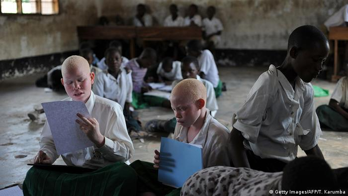 Albino children with their classmates in a school in Tanzania.