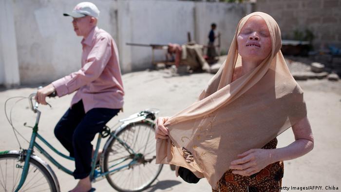 Tansania Albinismus - Albino United football club
