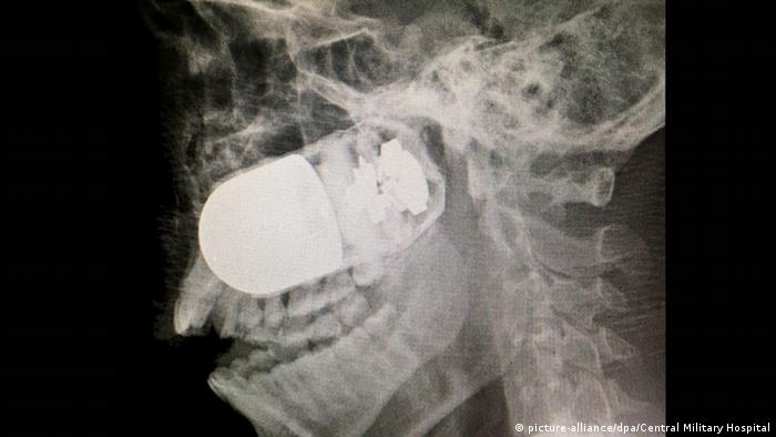 An X-ray shows the grenade lodged in the soldier's face