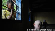 Afrika Albinismus