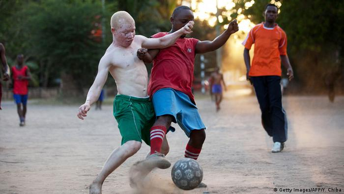 Albino United Football Club training in Tanzania (Photo: AFP)