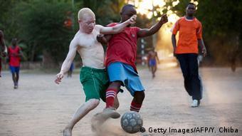 Tansania Albino United football Club