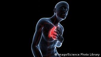 Symbolbild Herz Herzerkrankung Herzanfall Herzattacke