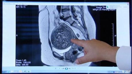 DW Fit und Gesund FUG Still aus Beitrag: Ultraschall vs. Myome