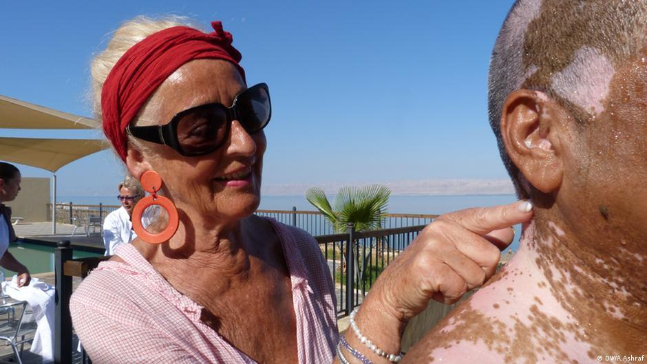 Vitiligo - die Krankheit mit den Flecken | Wissen & Umwelt ...