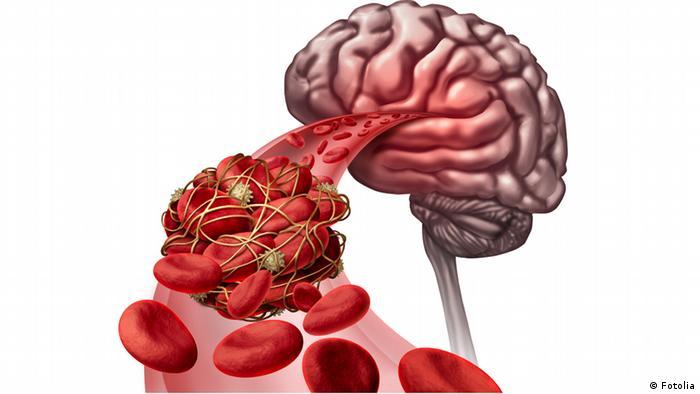 الصوم يقي من الخرف: فهو يشجع على تجدد الخلايا العصبية