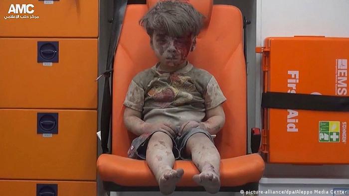 Мальчик, пострадавший от военных действий в Алеппо