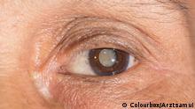 Close up of the mature cataract during eye examination. Copyright: Colourbox/Arztsamui