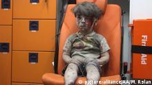 Syrien Aleppo verletzter Junge Omran Daqneesh und Schwester