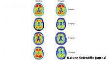 Nature Scientific Journal - Gehirn-Bilder Alzheimer