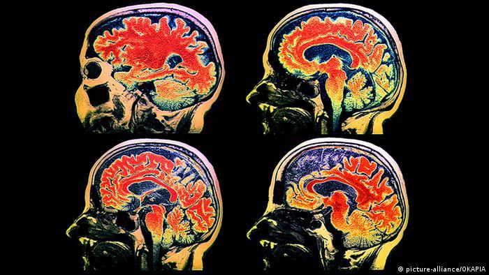 عالم ألماني: مخ الإنسان يمكن تدريبه كأي عضلة بالجسم
