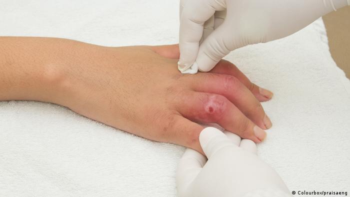 Symbolbild Verletzung an der Hand (Colourbox/praisaeng)
