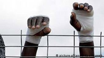 The injured hands of an African immigrant raised above the fence