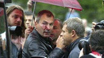 Abgeordneter Volker Beck bei Demo angegriffen
